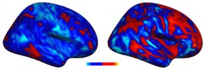 A comparison in the extent of the voxel deviation from the typical profile two individuals with autism. The individual with the more severe autism symptoms (right) showed greater deviations, both positive (more red) and negative (lighter blue), from the typical inter-hemispheric connectivity pattern compared to the individual with the less severe autism symptoms (left). In other words, the deviations from the control pattern was larger in the participant with the more severe symptoms. Credit: Carnegie Mellon University